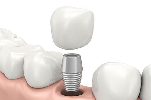 Dental Implants 1 - Royal Oak, MI | North Oaks Dental