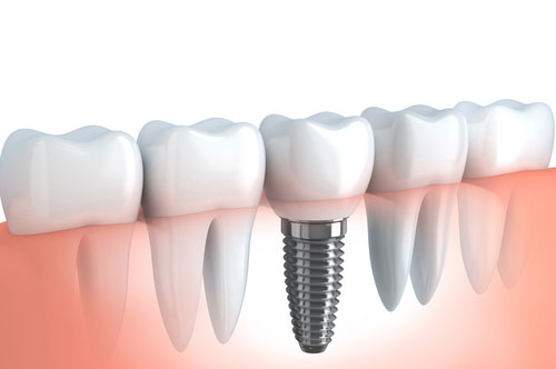 Dental Implants 2 - Royal Oak, MI | North Oaks Dental