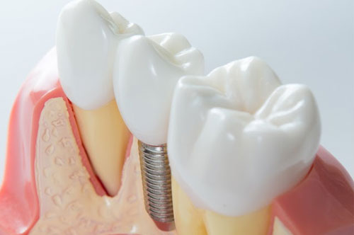 Dental Implants 3 - Royal Oak, MI | North Oaks Dental