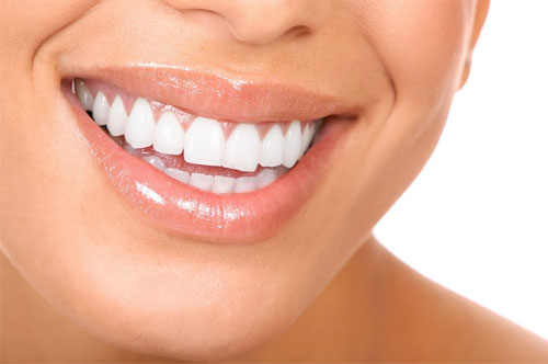 Gum Disease Treatment 1 - Royal Oak, MI   North Oaks Dental