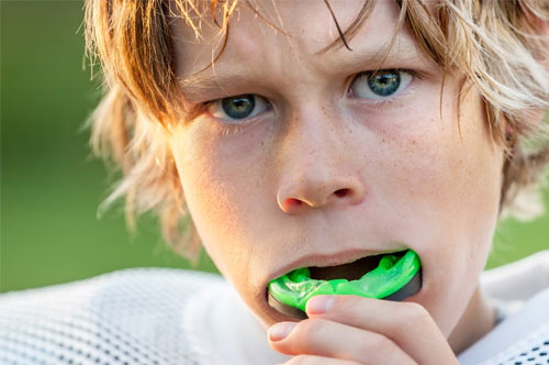 Mouthguards 1 - Royal Oak, MI | North Oaks Dental