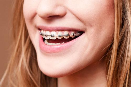 Orthodontics 1 - Royal Oak, MI | North Oaks Dental