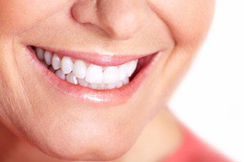 Teeth Whitening 1 - Royal Oak, MI | North Oaks Dental