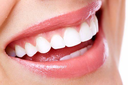 What Are Best Ways to Whiten Teeth