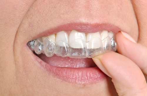 Invisalign Can Help Your Career
