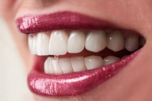 4 reasons You'll Love Your Dental Implants